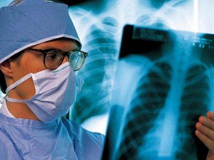 ВБашкирии насчитывается неменее 26 тыс. больных туберкулезом